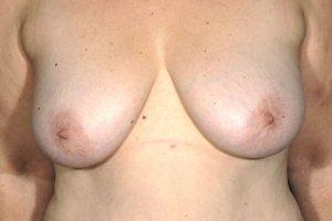 Manhattan Breast Lift before 2